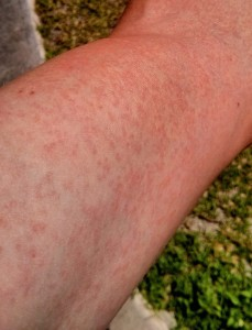 While some infected individuals get a rash, others show no symptoms.
